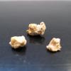 kidney-stones1